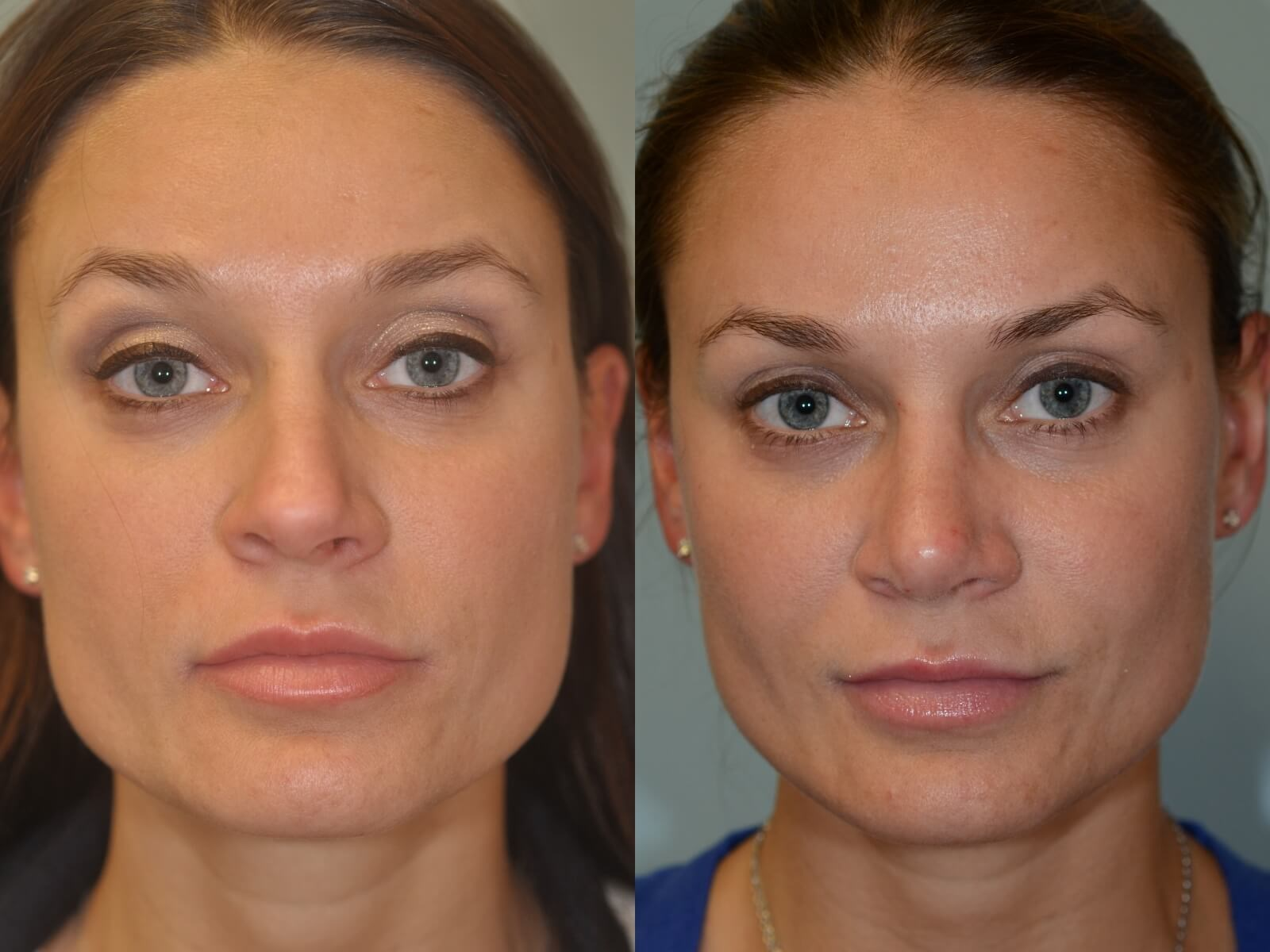 Rhinoplasty Before And After Revision Rhinop...