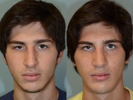 Rhinoplasty and Chin Implant Before and After