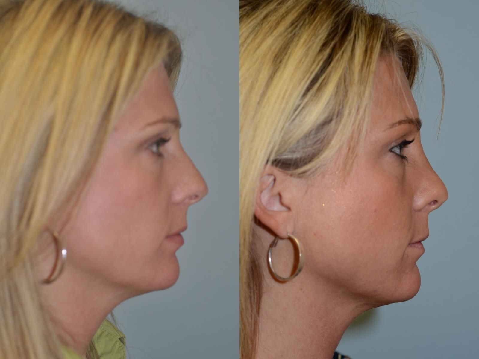 Rhinoplasty Before and After