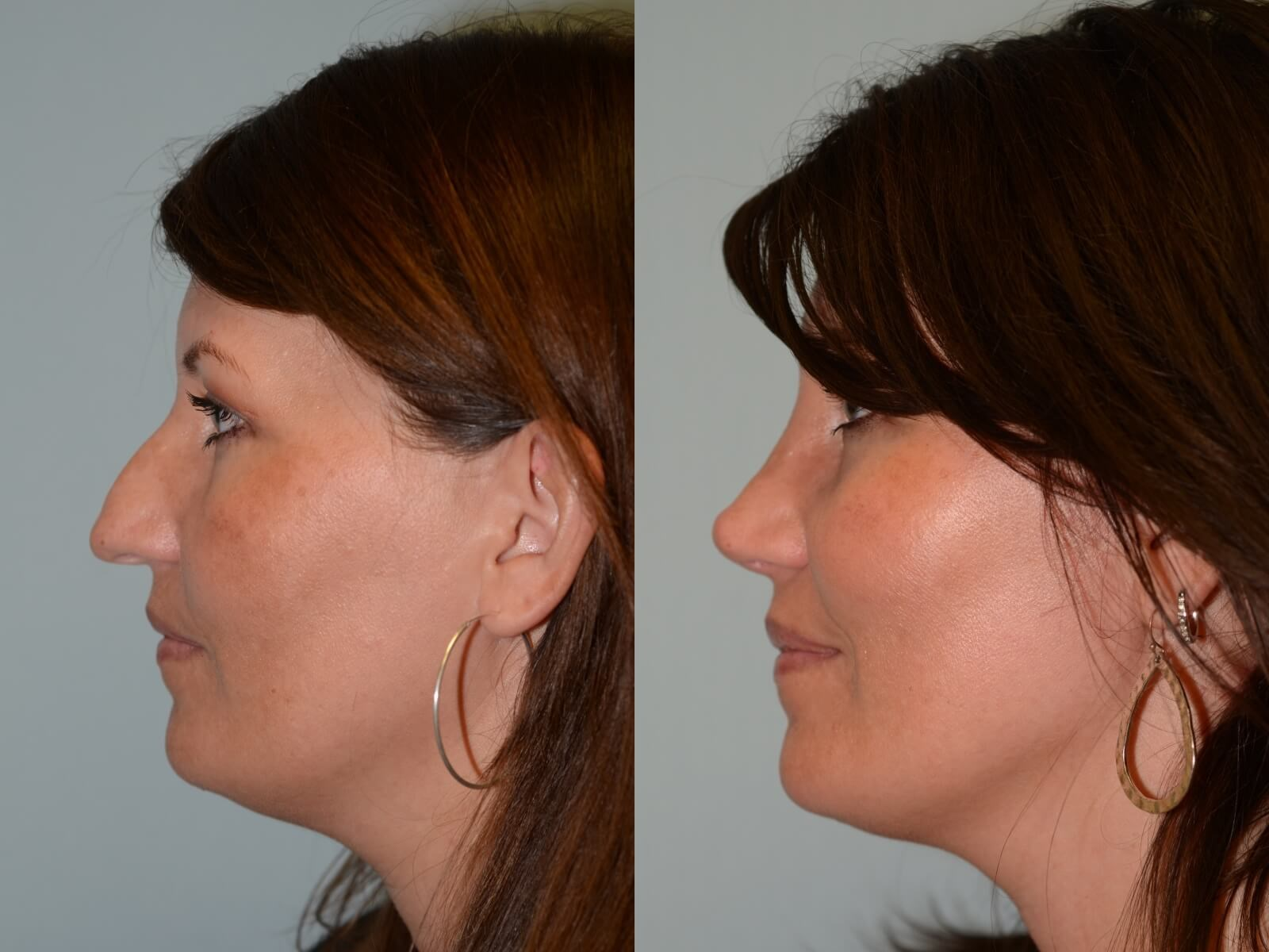 A more feminine nasal tip Before and After