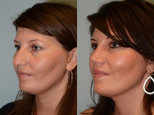 Softer nasal slope Before and After