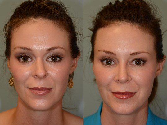 Houston, TX Rhinoplasty Before and After