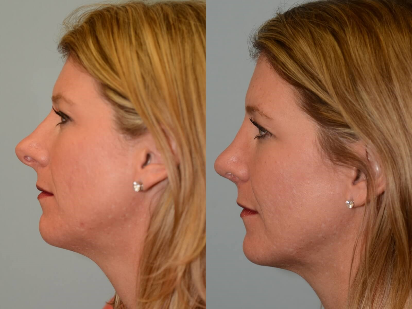 Rhinoplasty Before and After 6 months