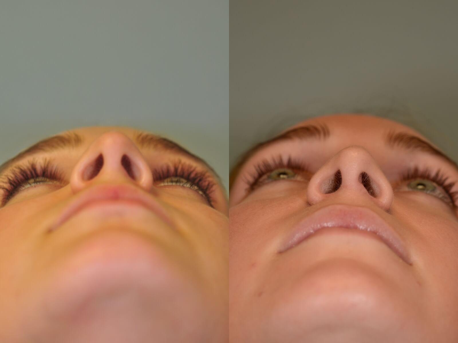 Rhinoplasty, Nasal Fracture Before and After