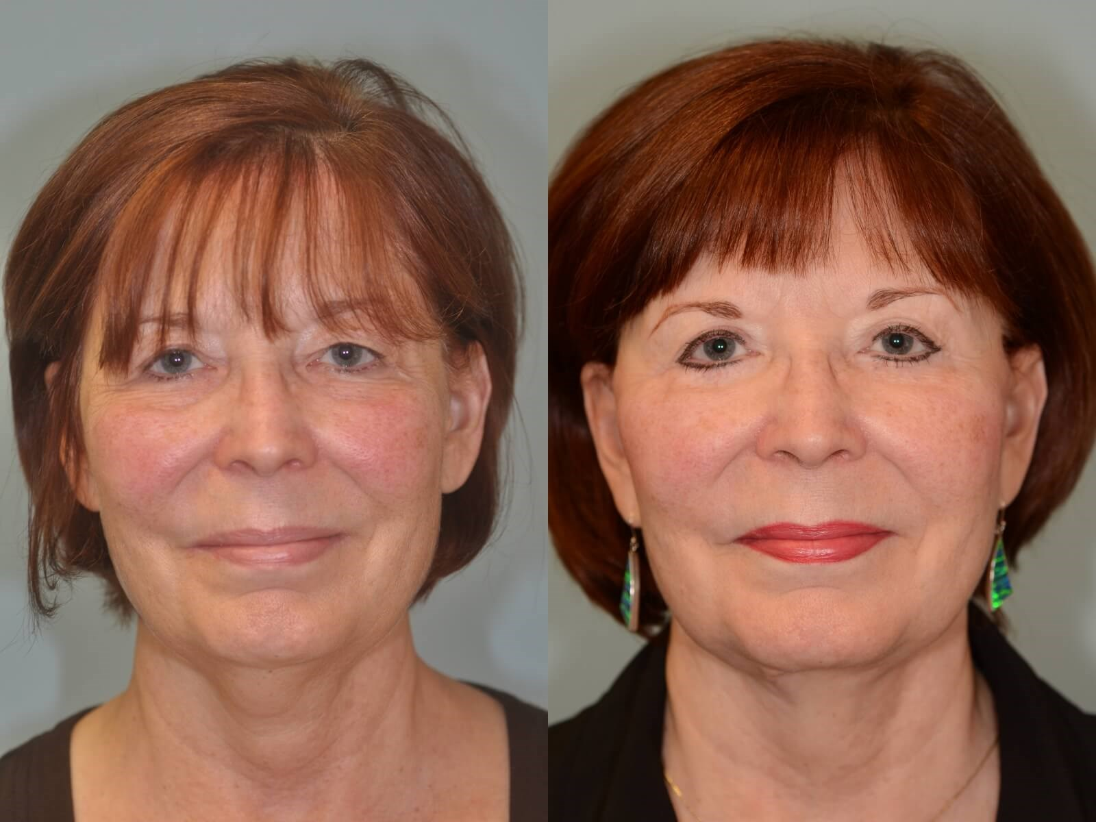 A more youthful appearance Before and After