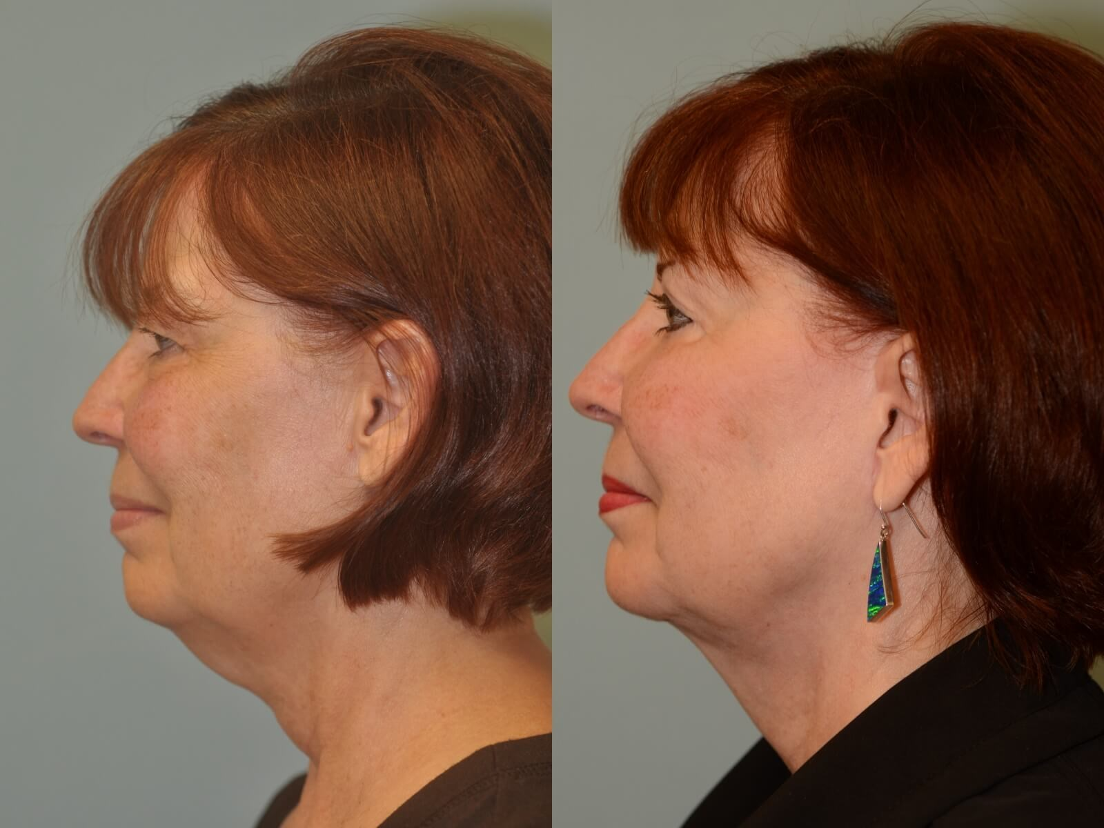 A slimmer side profile Before and After