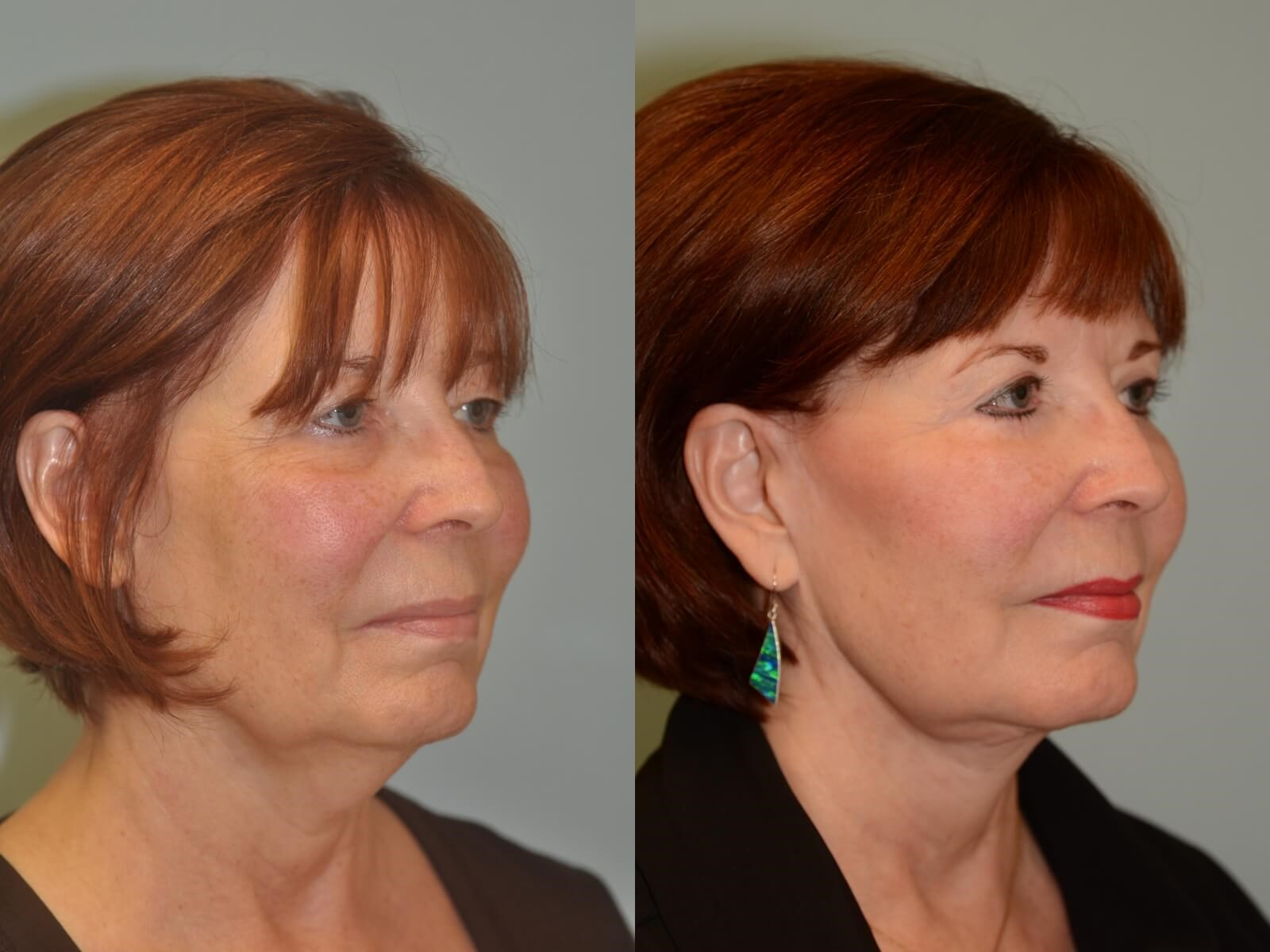 More defined cheekbones Before and After