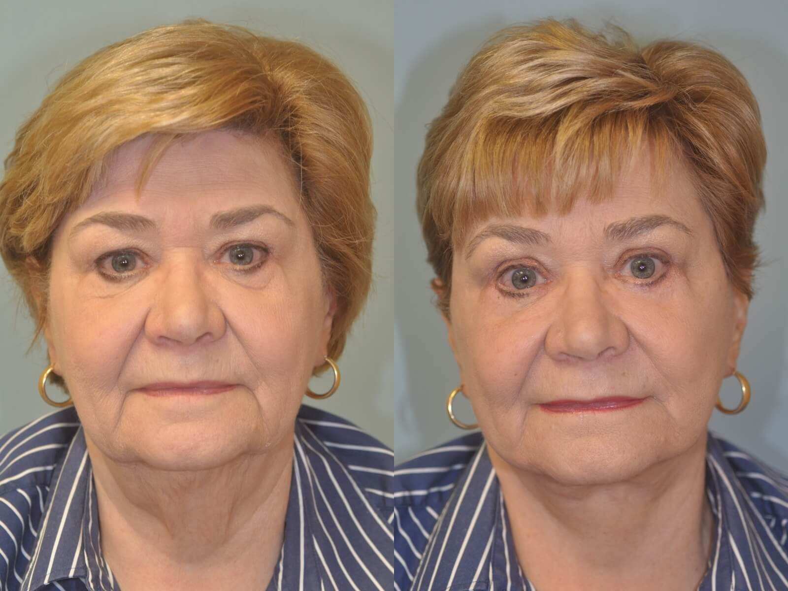 A more youthful look  Before and After