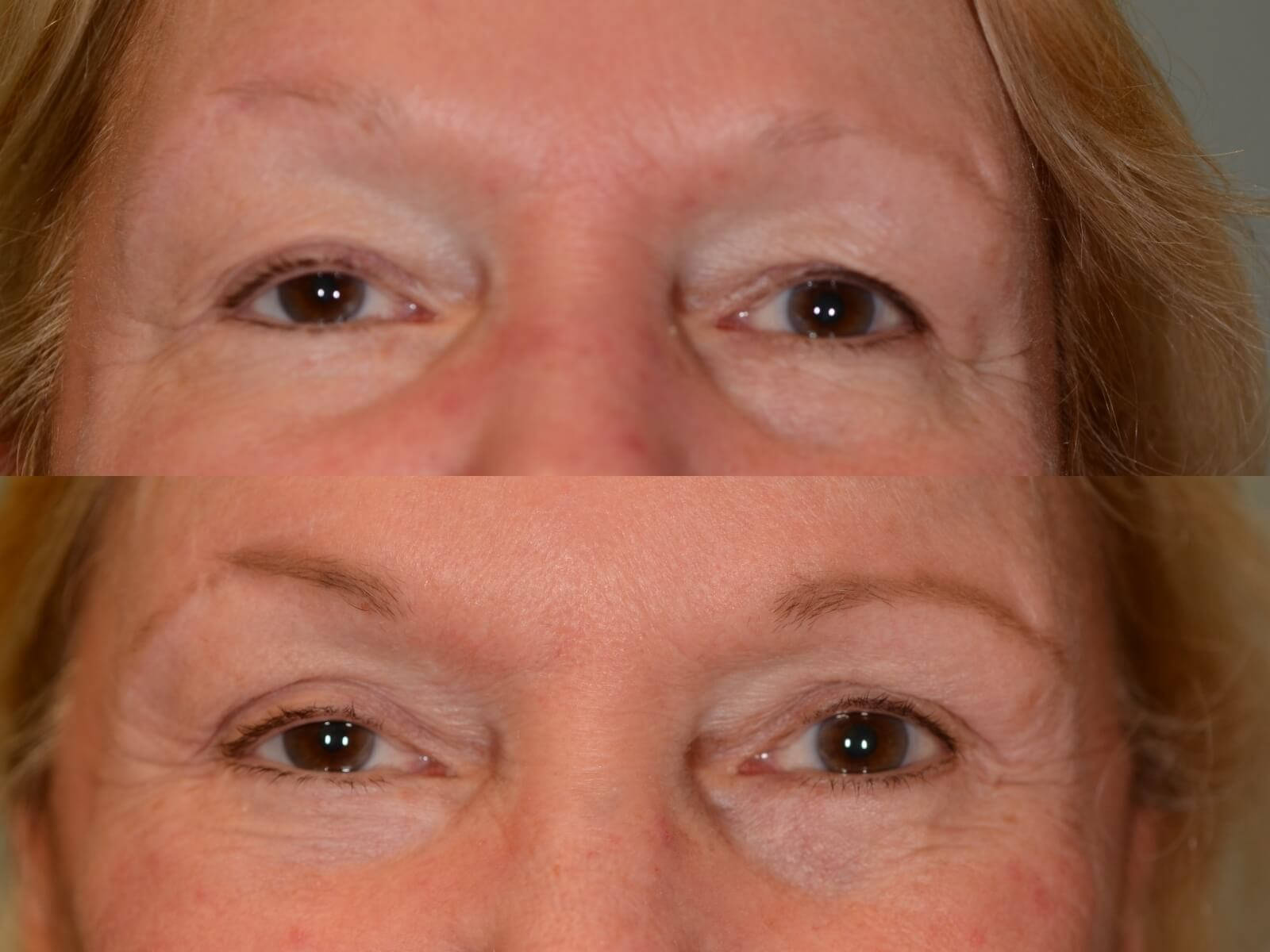 Rejuvenated Facial Features Before and After