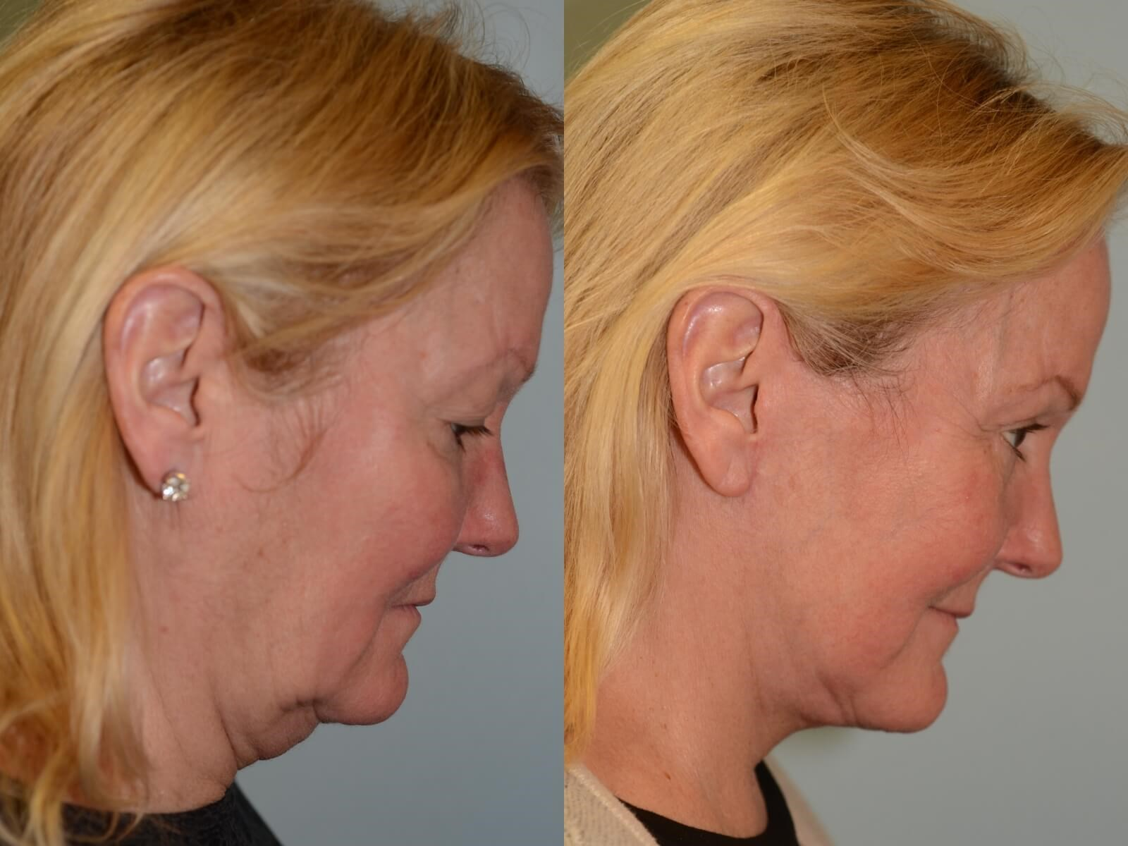 No more redundant skin Before and After