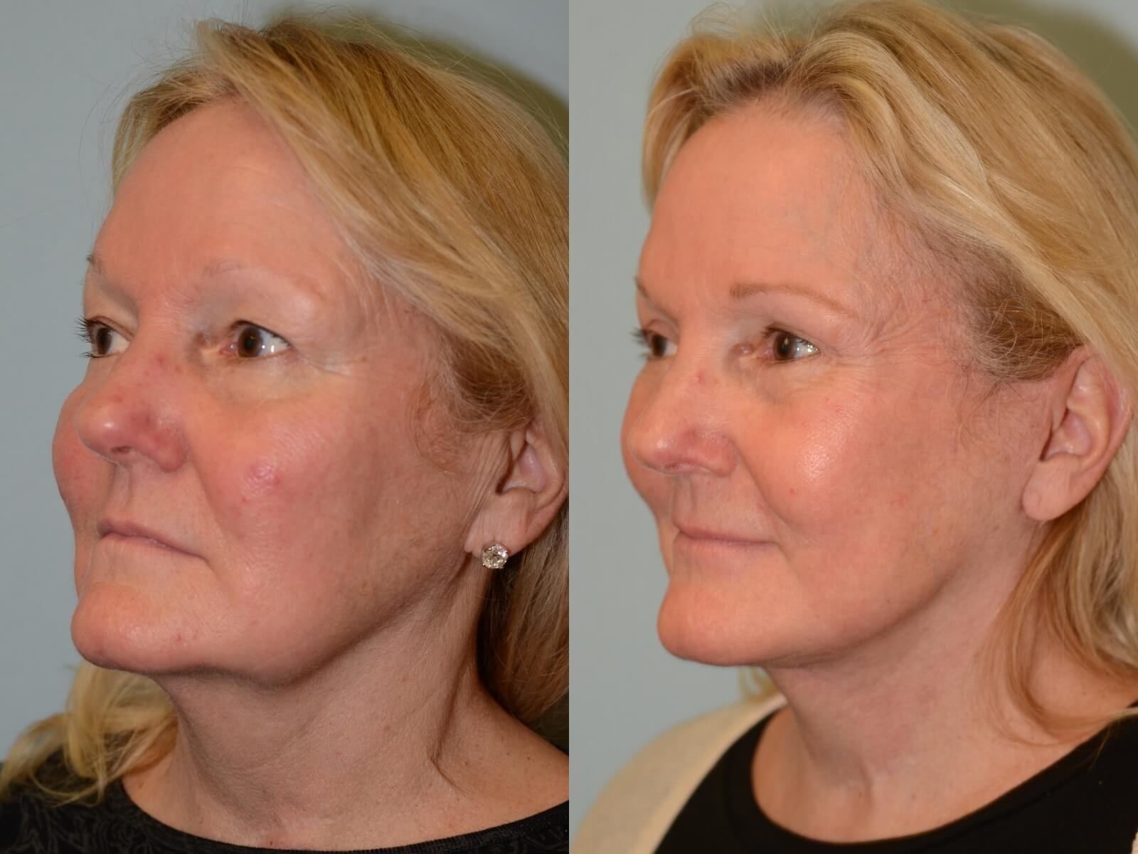 Smooth and youthful lines Before and After