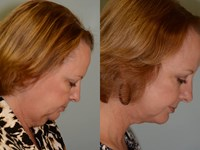 Before & After Chin Liposuction Pictures