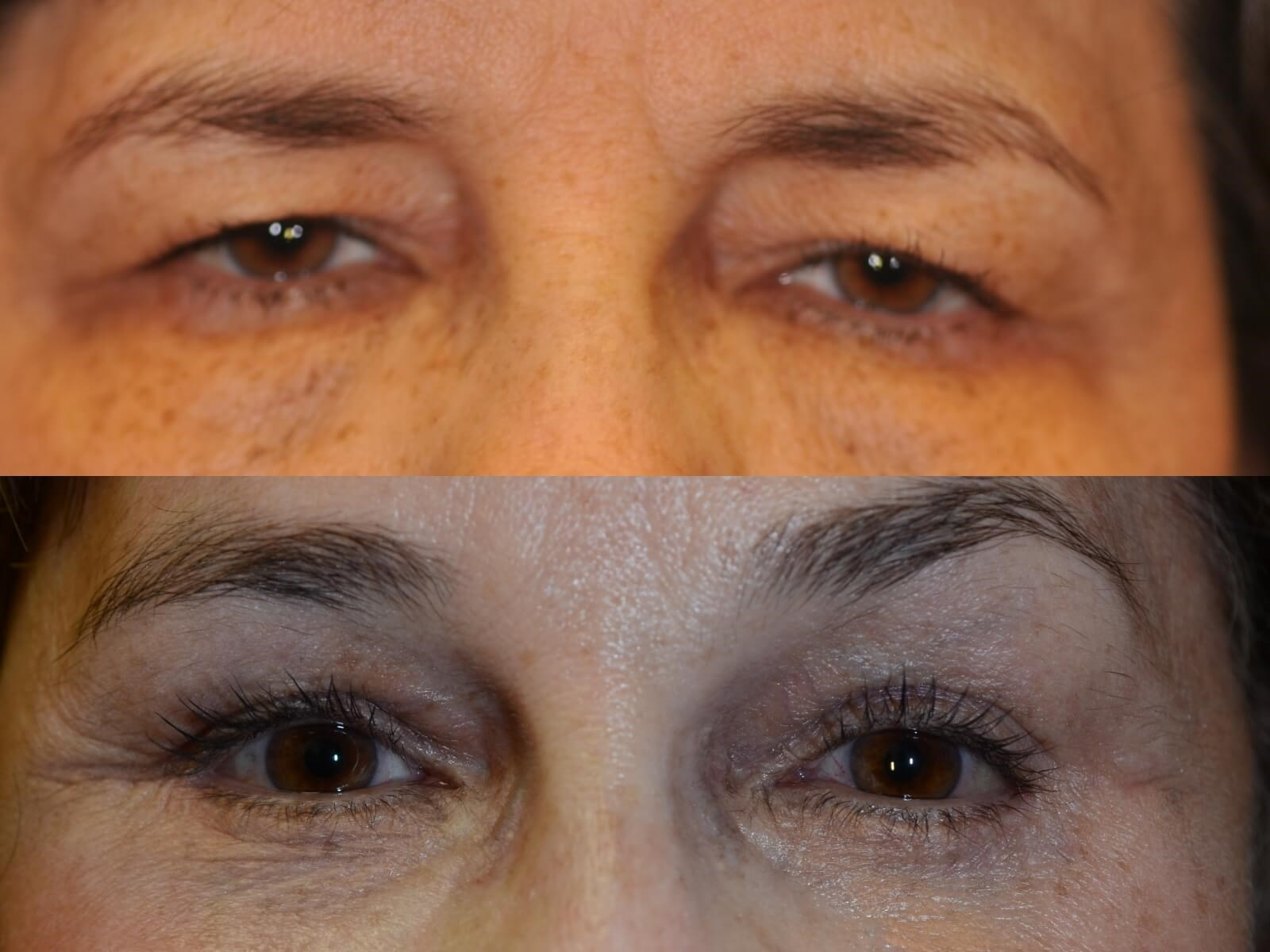 Facelift and Brow lift Before and After