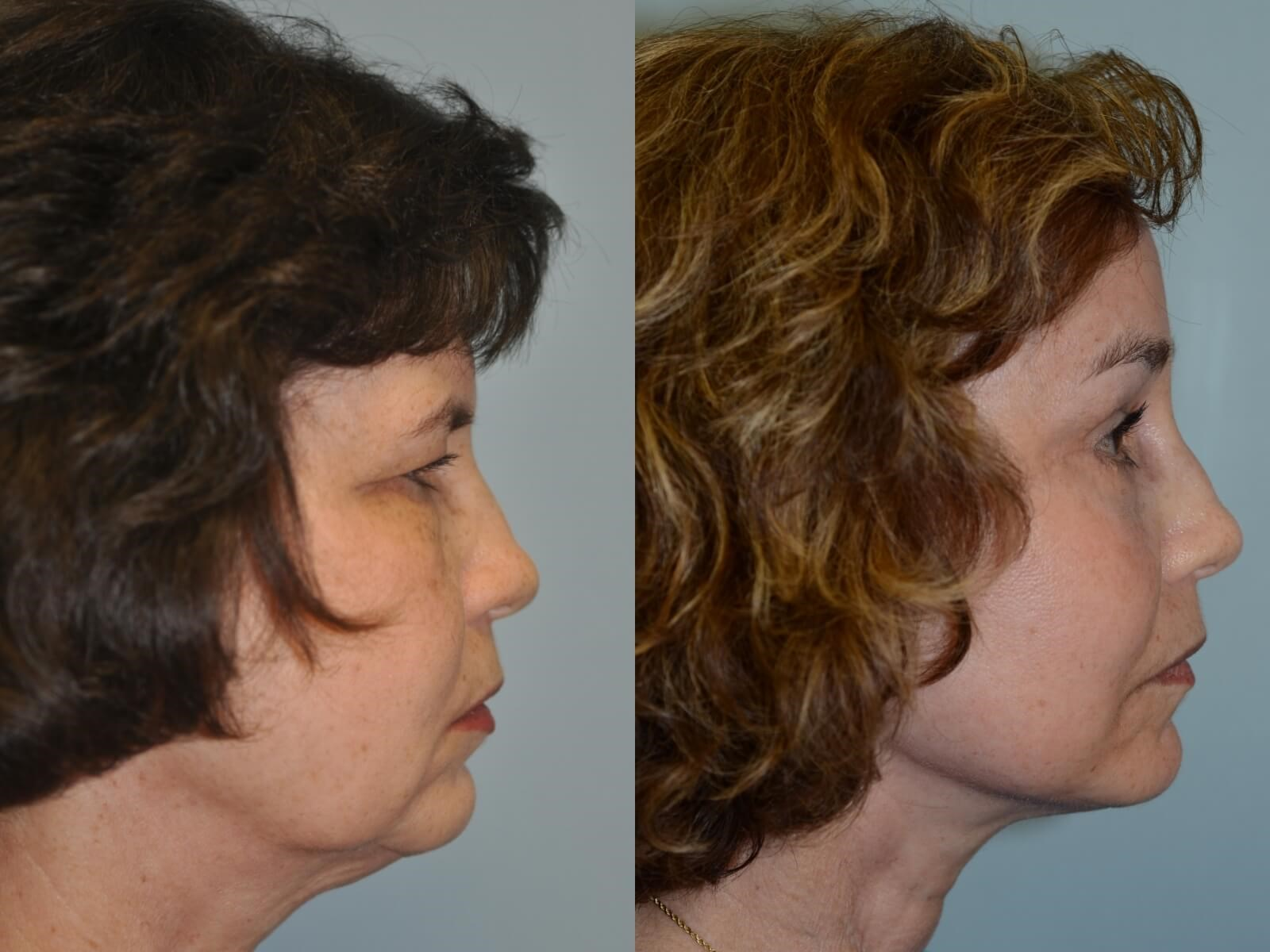 A smooth jaw and neck contour Before and After