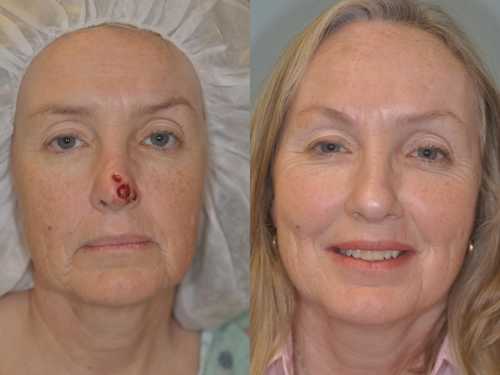 MOHS reconstruction with FHF Before & After Reconstruction