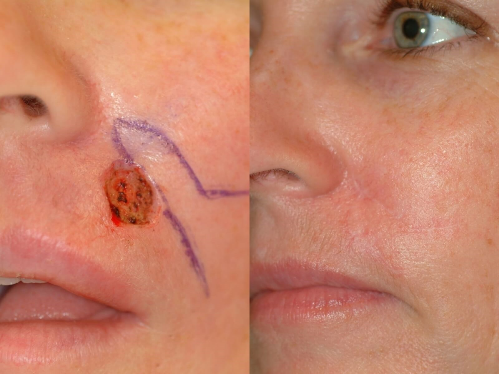 MOHS reconstruction Before and  4months After