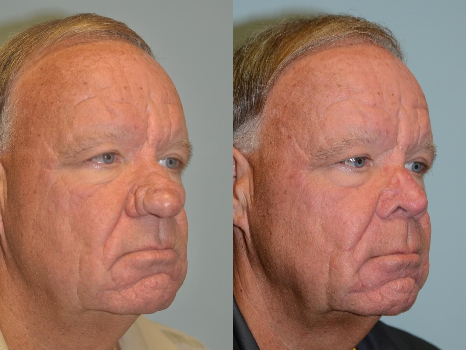 Rhinophyma Before and After
