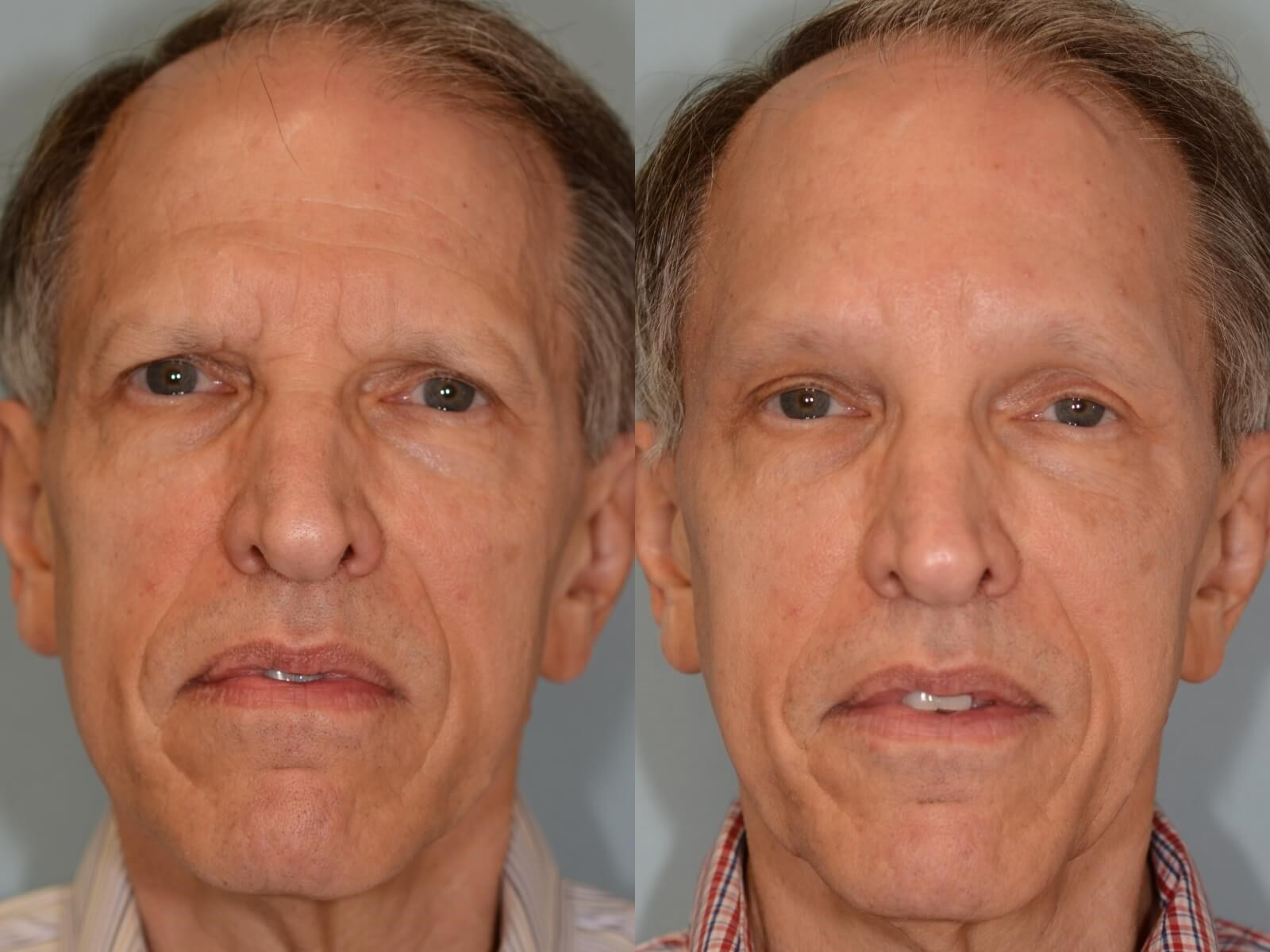 Endoscopic Brow lift Before and After