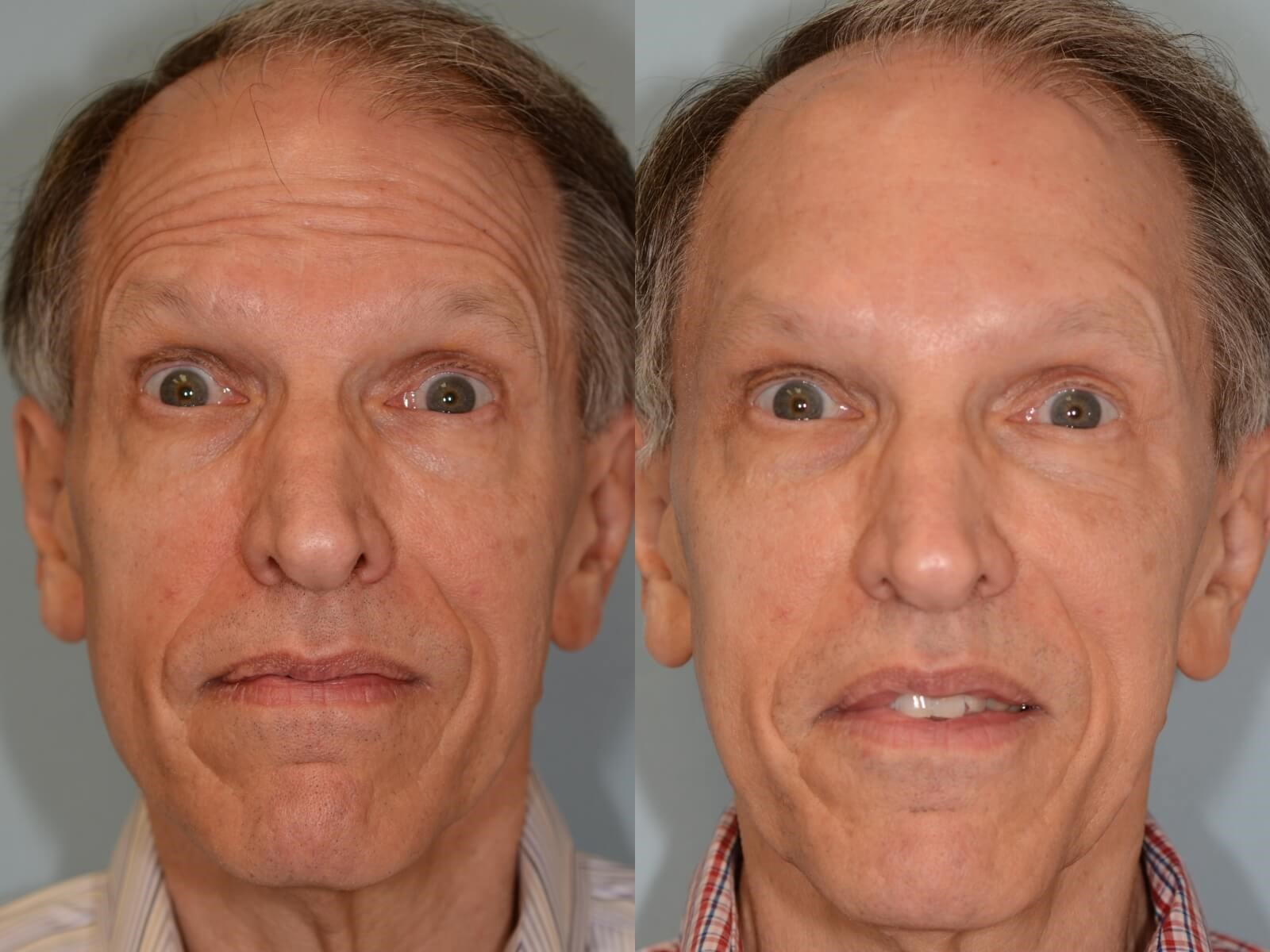 Before and After Brow Lift Photos