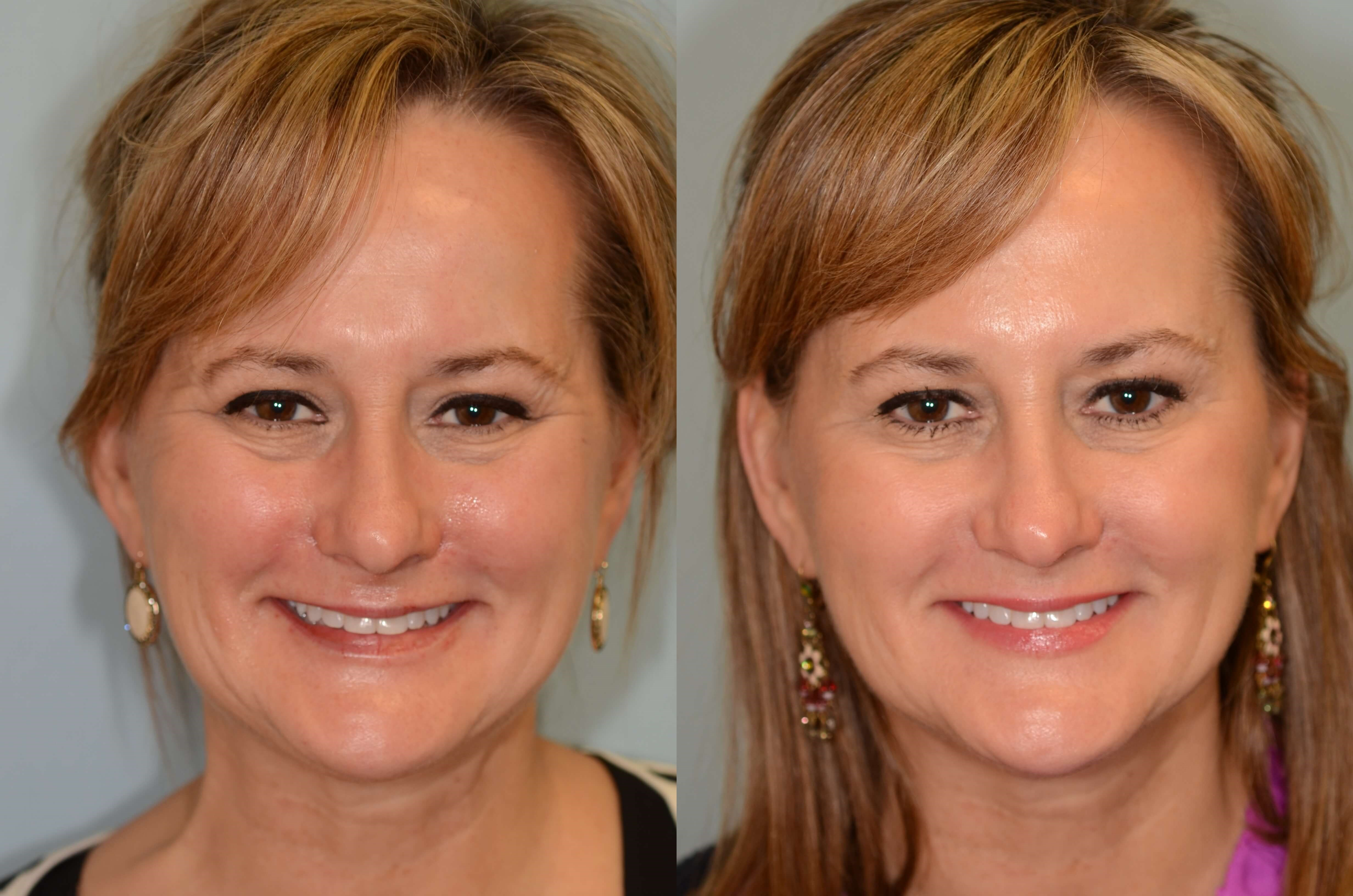 Botox to smooth away wrinkles! Before and After