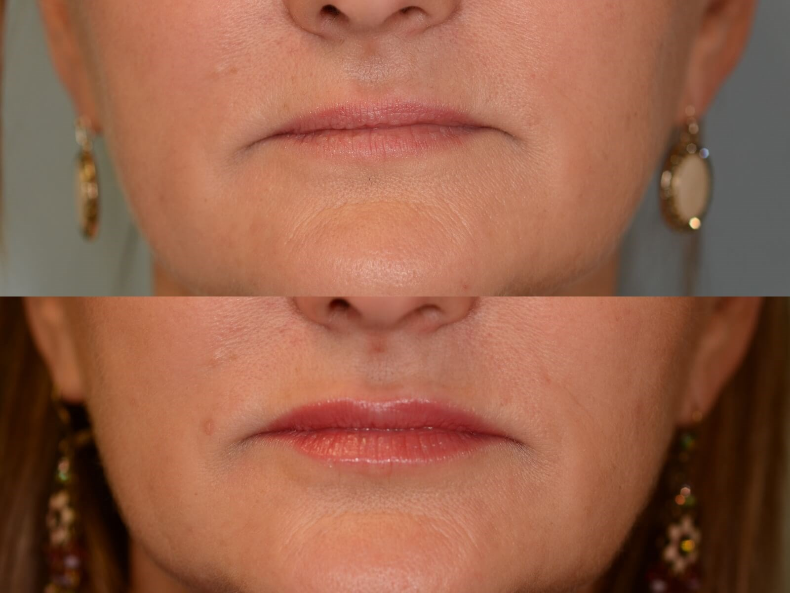 Fillers Rejuvenate the face Before and After