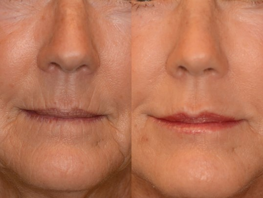 Juvederm adds lip volume! Before and After