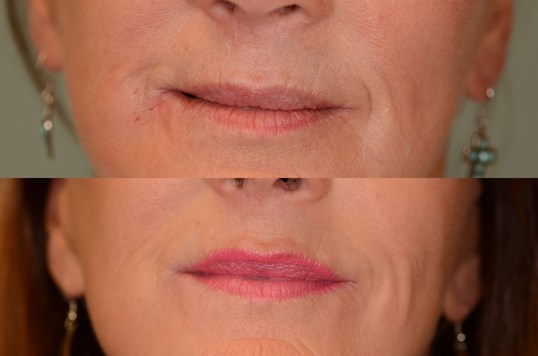 Juvederm naturally plumps lips Before and After