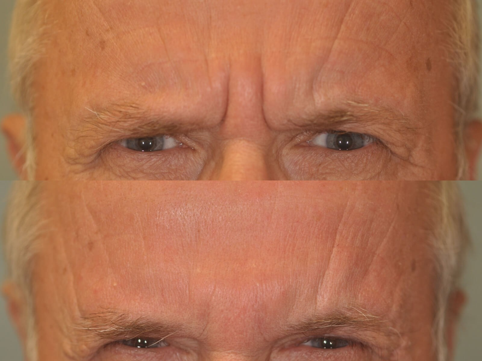 Botox for severe Frown Lines Before and After