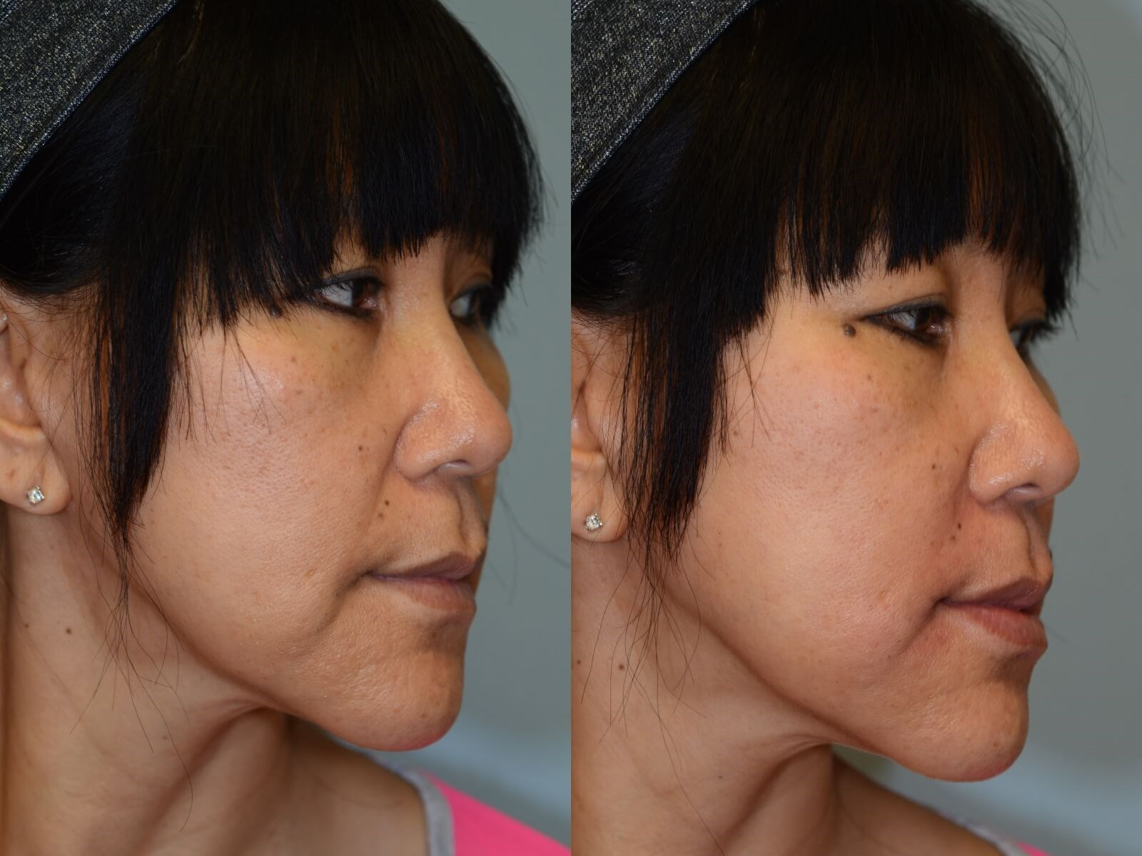 Juvederm to smooth smile lines Before and After