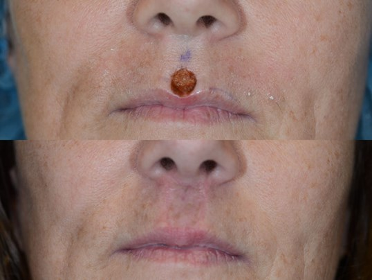 Lip reconstruction after MOHS Before and After