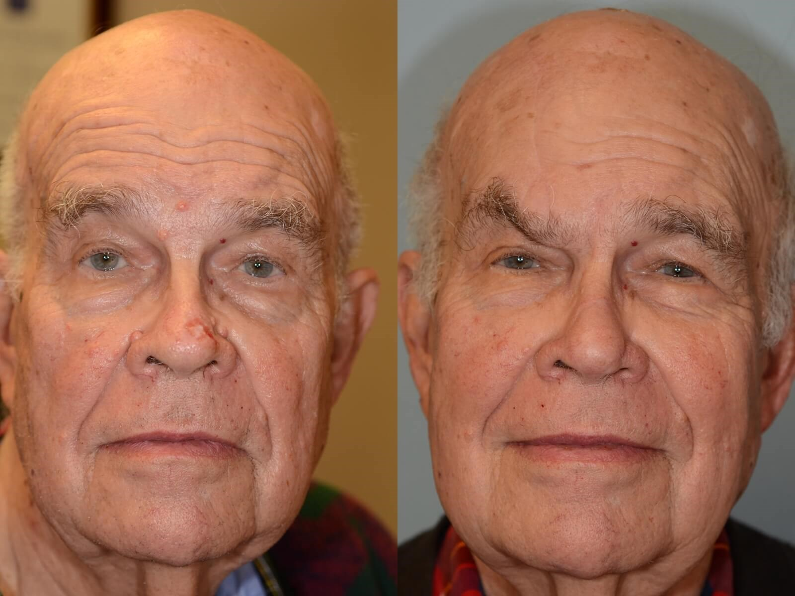 Forehead Flap Reconstruction Before and 4 months After