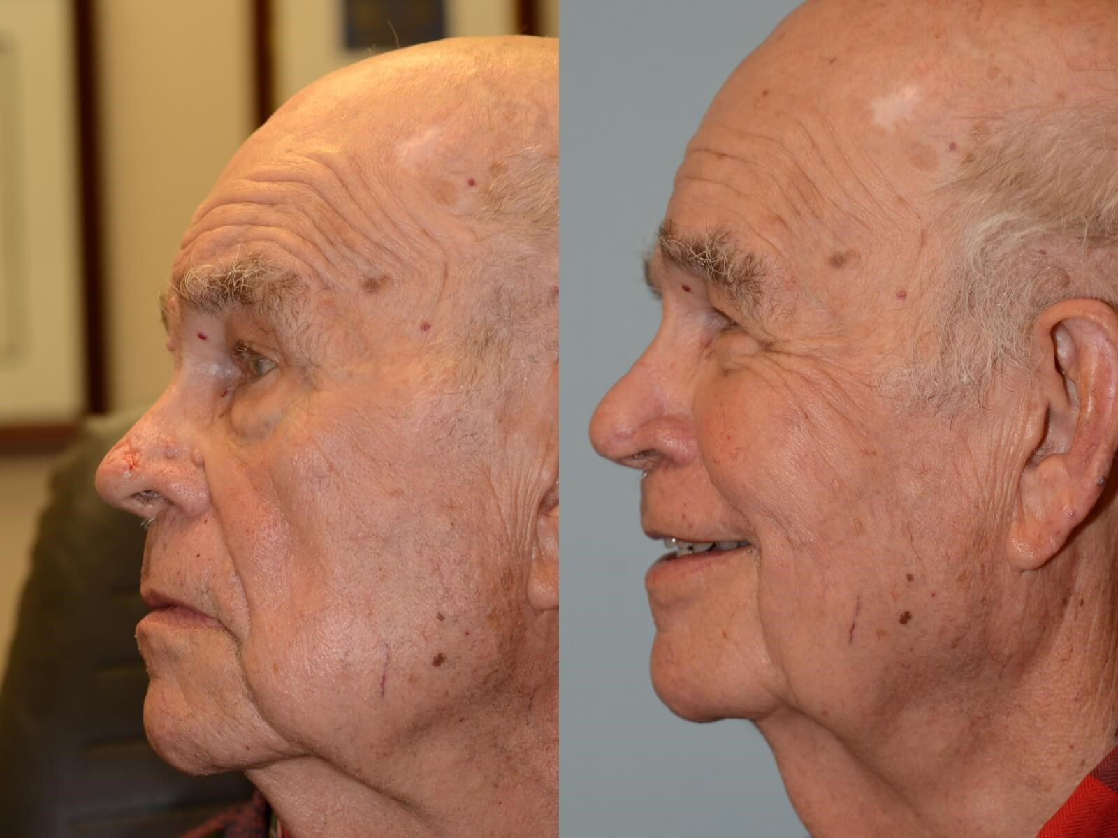 Forehead Flap Reconstruction Before and After