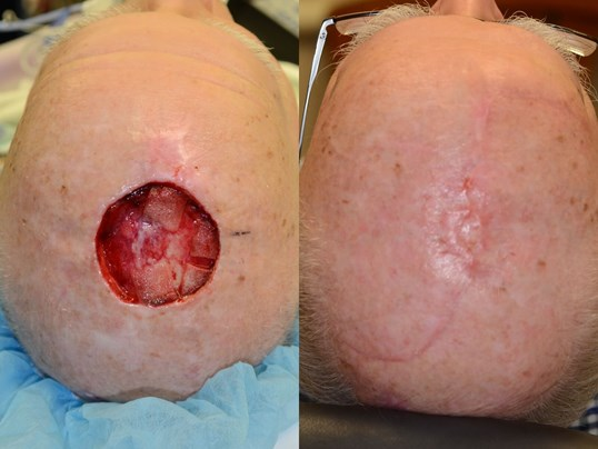Complex Wound closure scalp Before and 3 months After