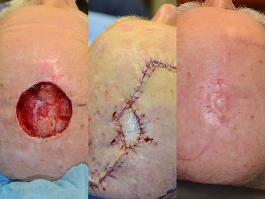 Complex Wound closure scalp Before, Post op and 3months