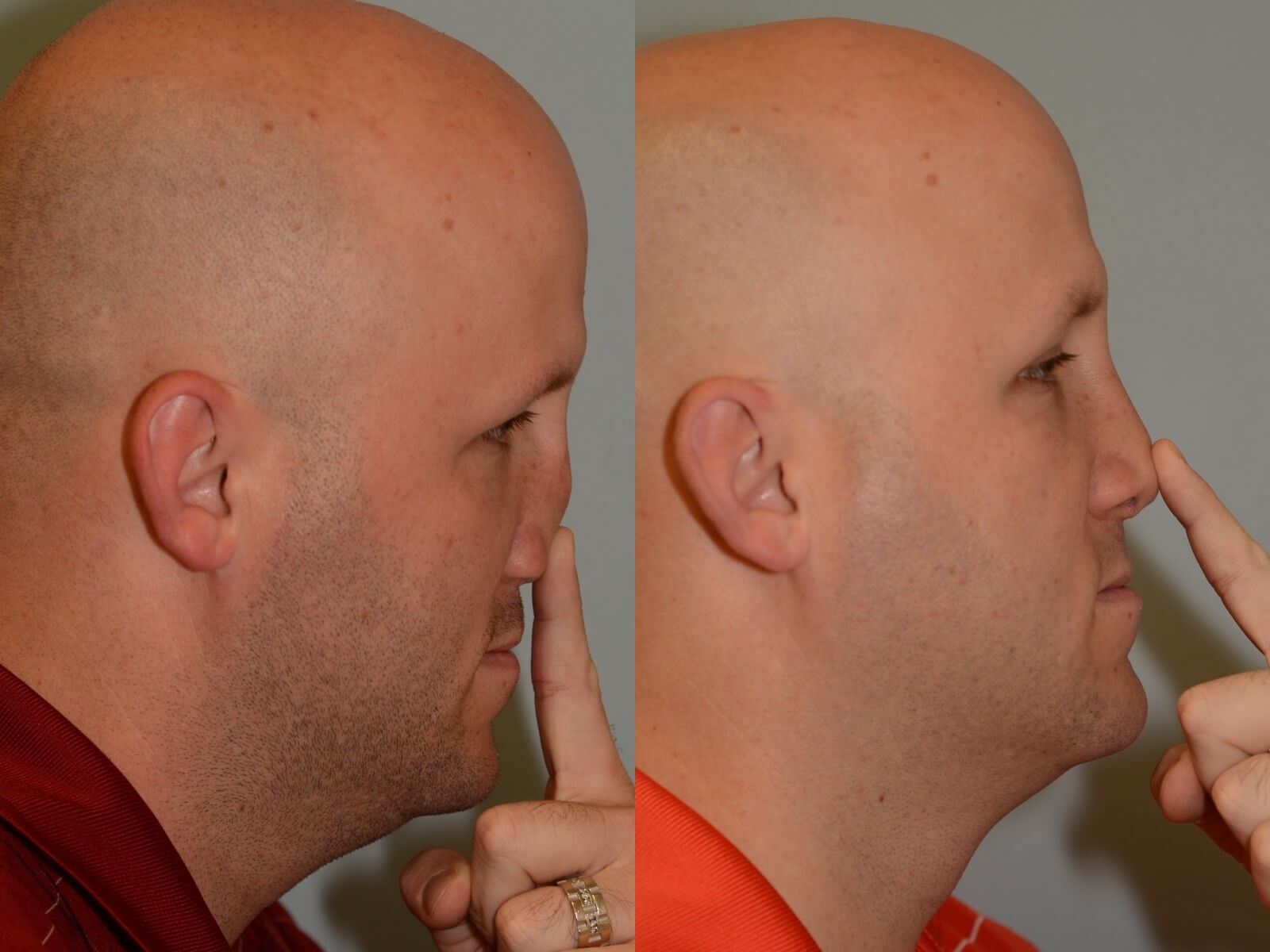 Nasal Support Restored Before and After