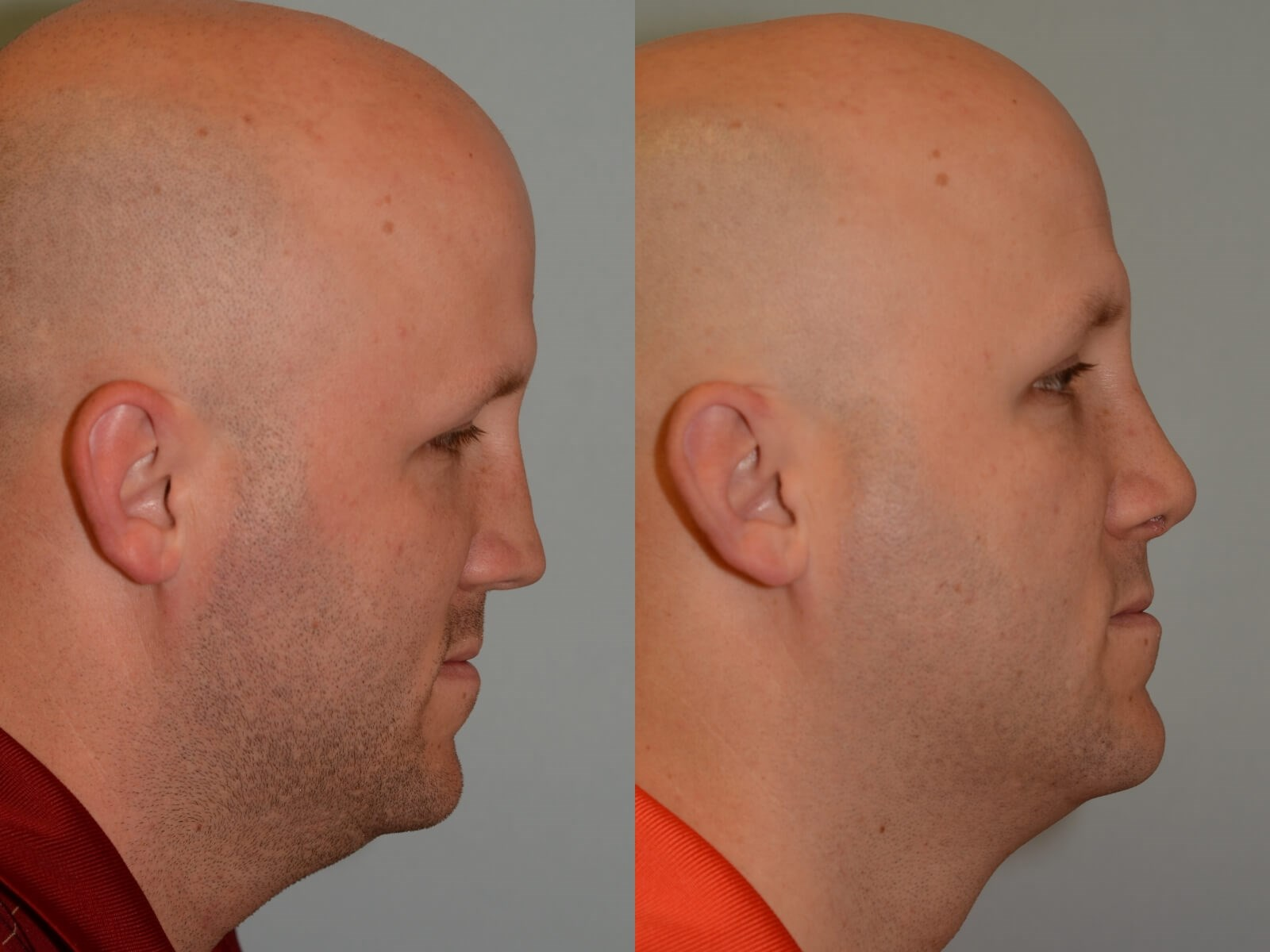 Nasal Valve Repair Before and After