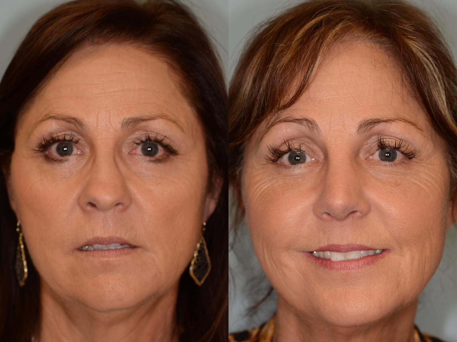 Nasal Valve Repair Rhinoplasty Before and After