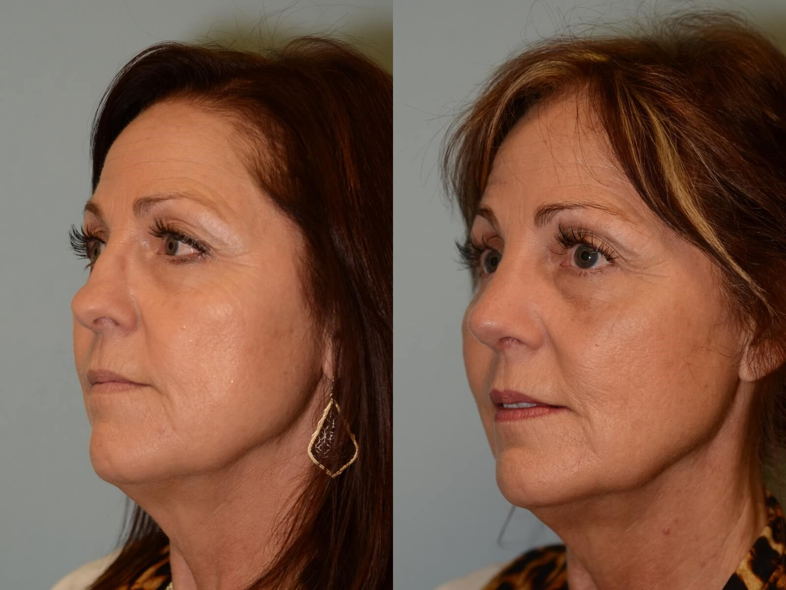 Smooth slope to nose restored Before and After