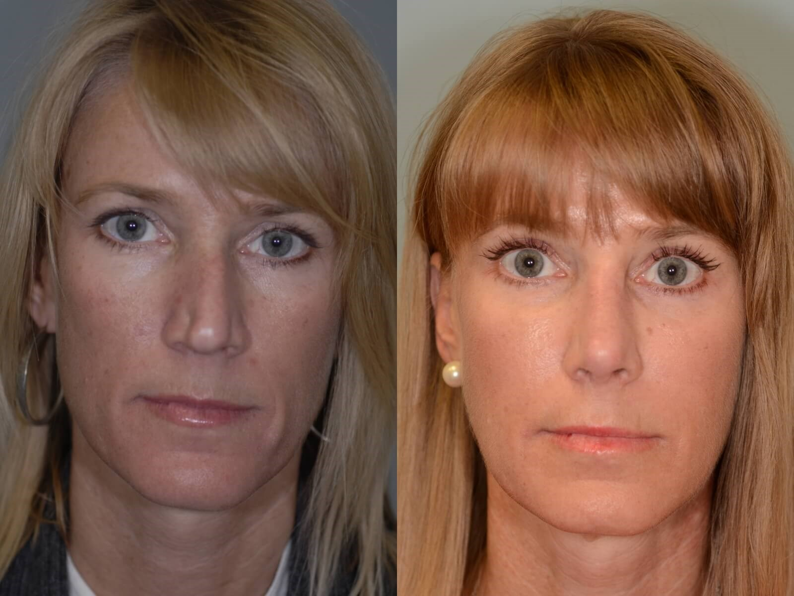 Rhinoplasty Nasal Valve Before and After