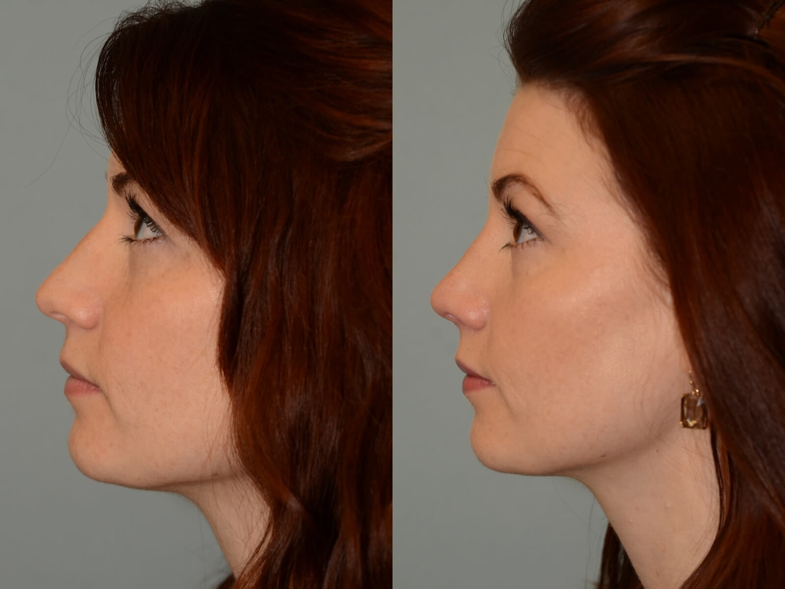 Beautiful slope to the nose! Before and After