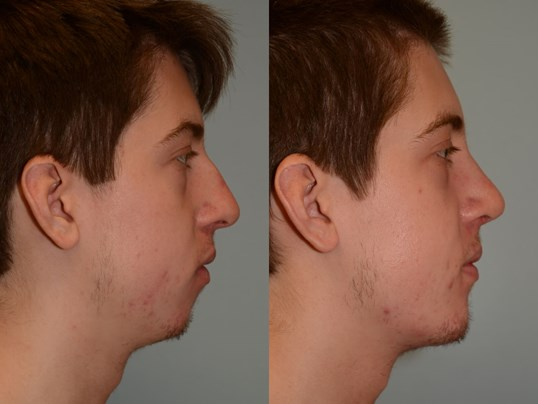 Chin Implant Rhinoplasty Before and After
