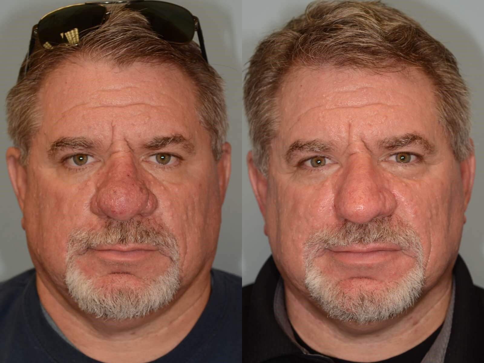 Laser removal of Rhinophyma Before and After