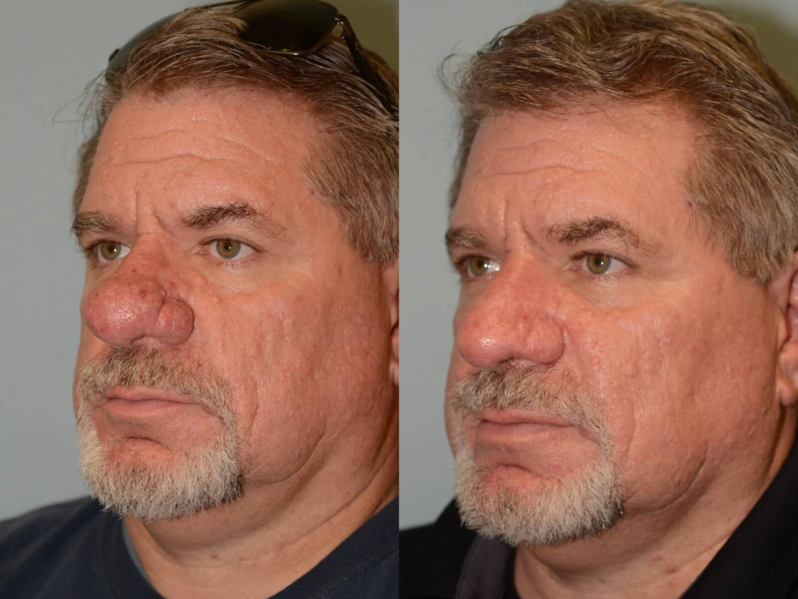 Removal of Rhinophyma Before and After