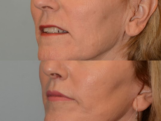 Beautiful Cupids Bow with Lift Before and After