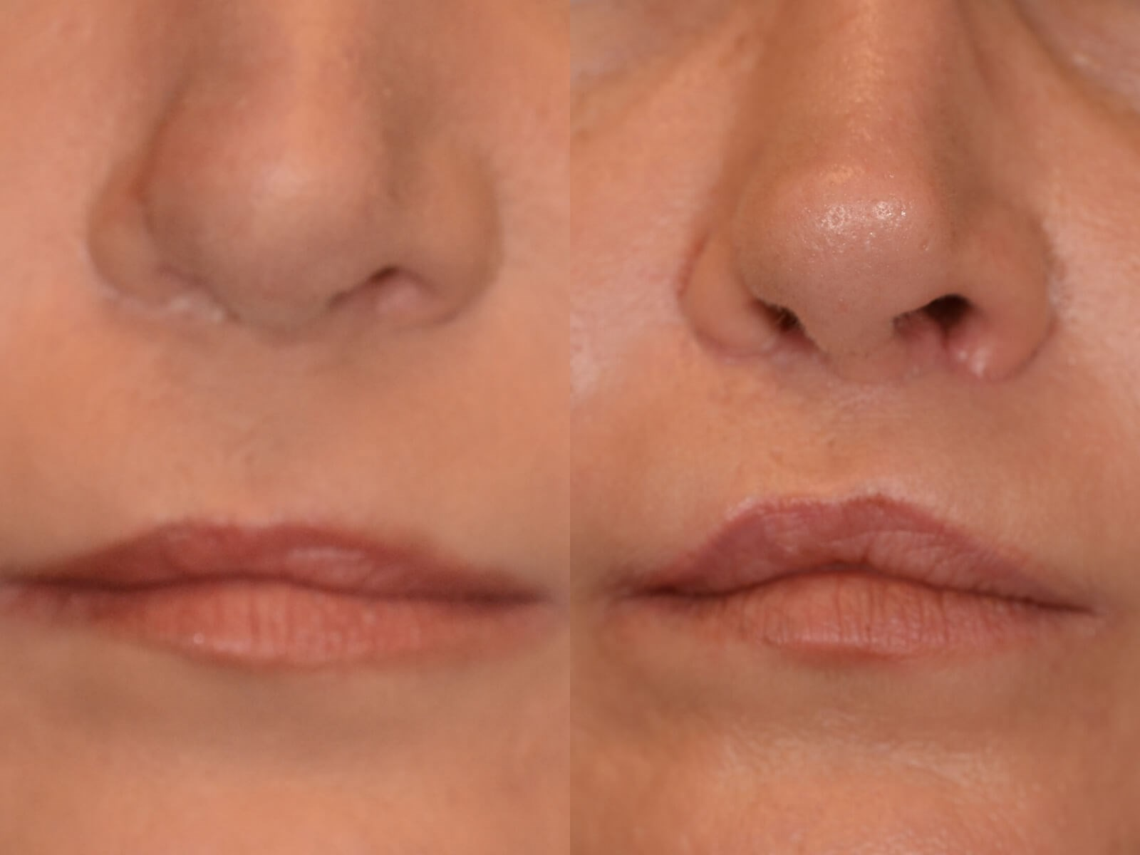 LipLift after Cleft lip repair Before and After