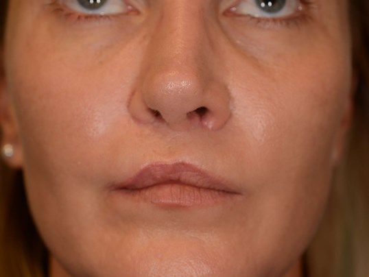LipLift after Cleft lip repair After