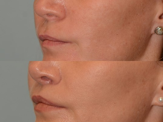 Lip Lift Before and After