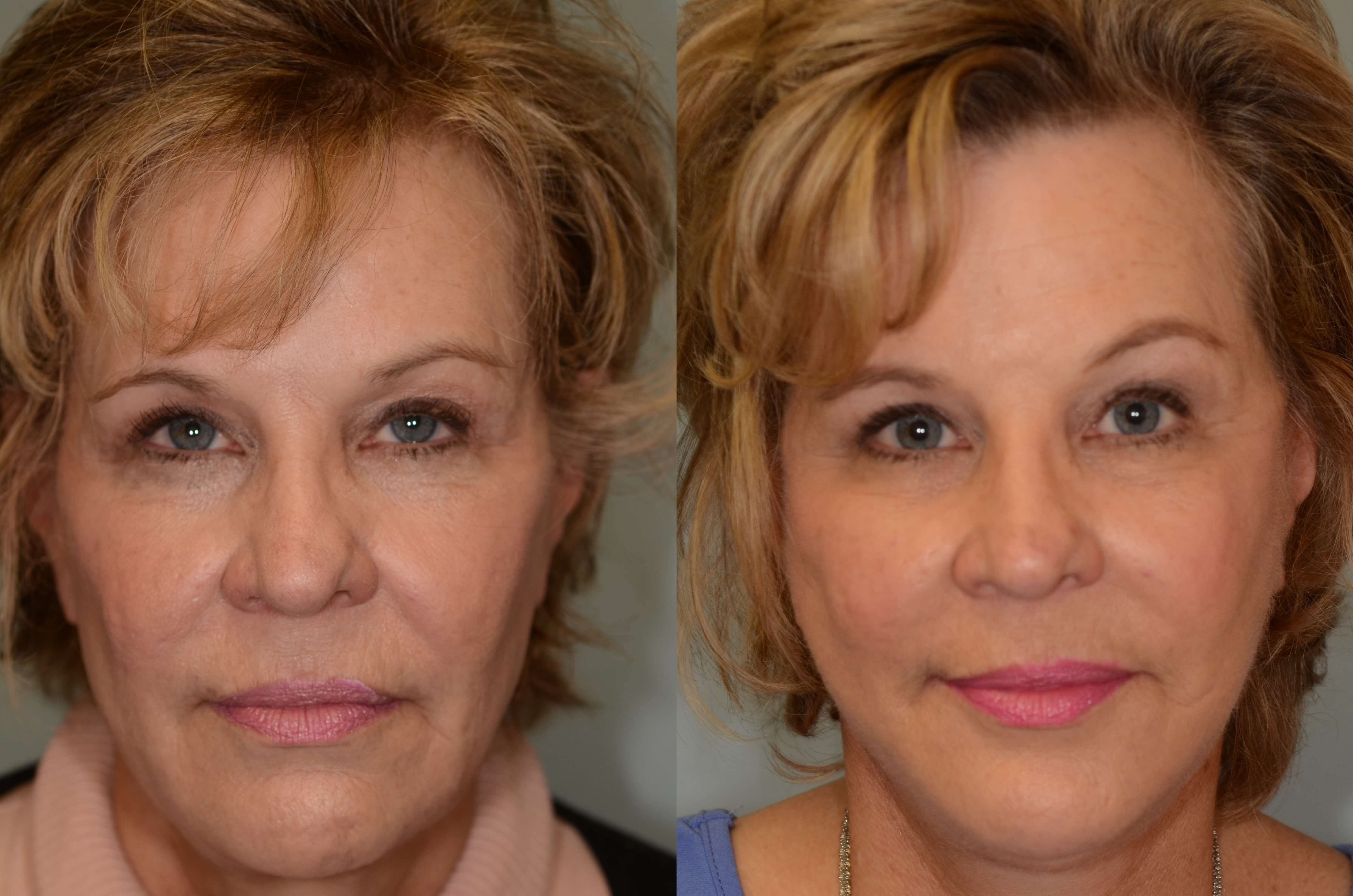 Update On Necklift With Platysmaplasty & Neck Liposuction
