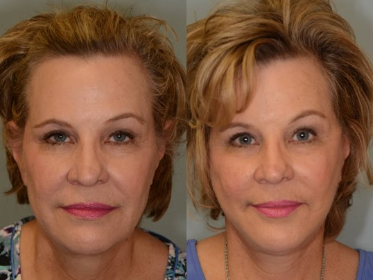 Facelift, Necklift Houston Before and After
