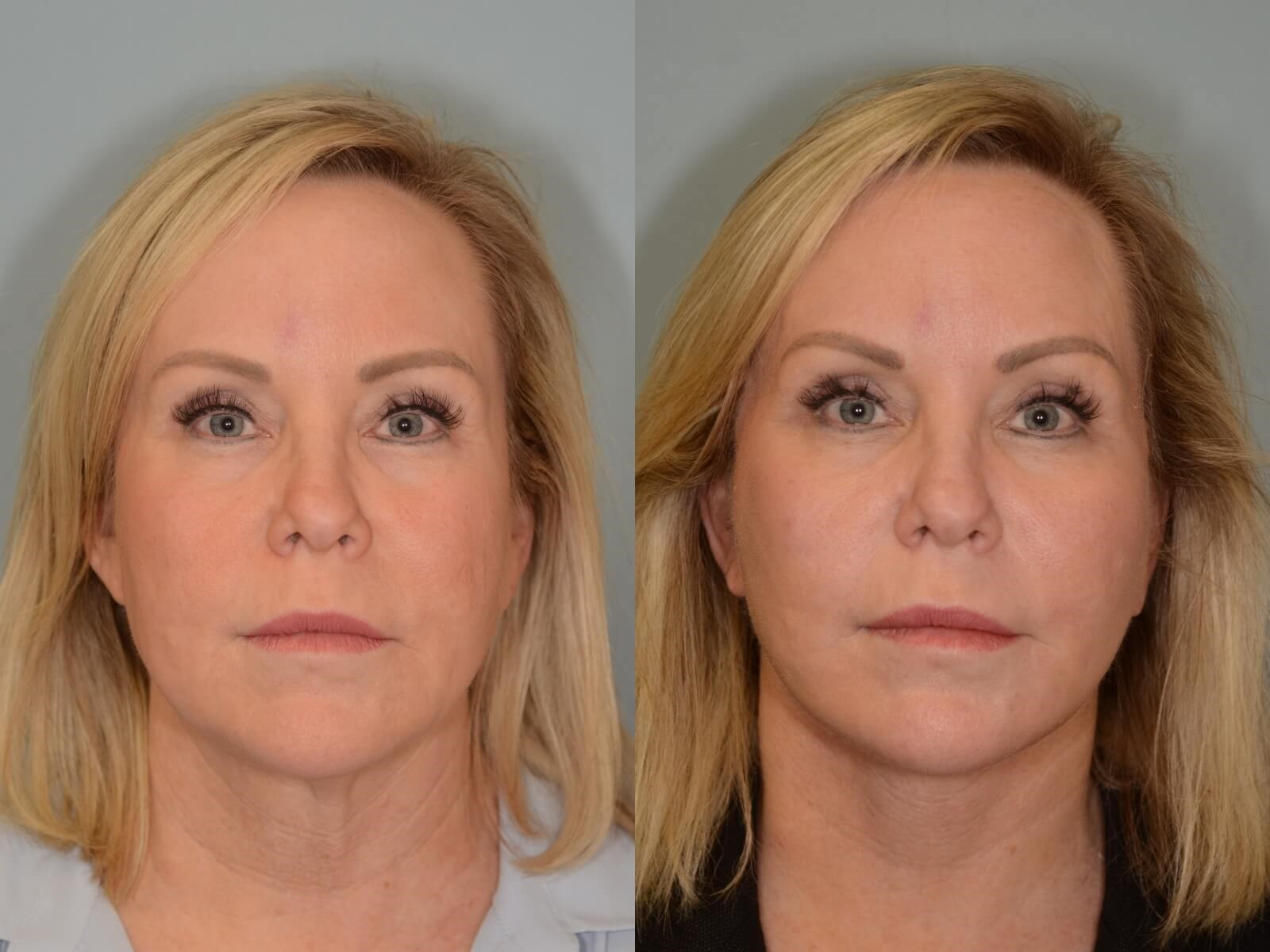 Facelift, Necklift Before and After